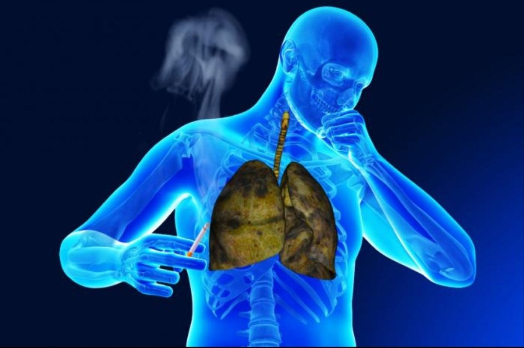 The lung 2